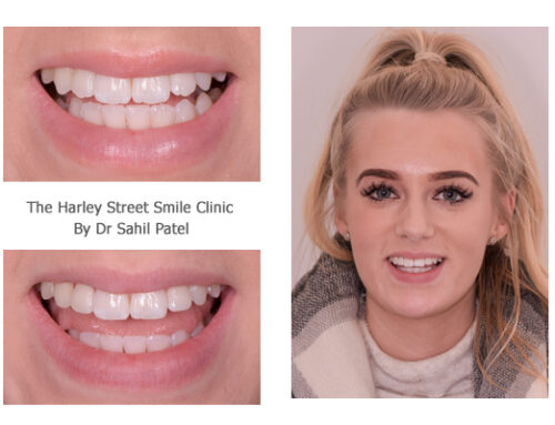 Tooth Contouring 01