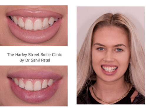 Tooth Contouring 02