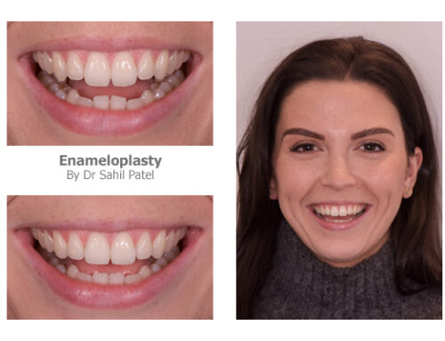 Tooth Contouring 04
