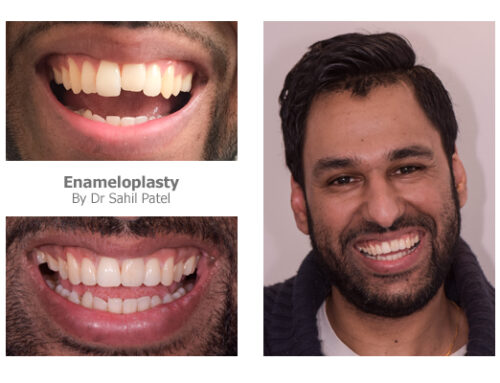 Tooth Contouring 03