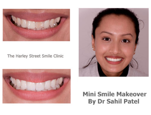 Mini Smile Makeover