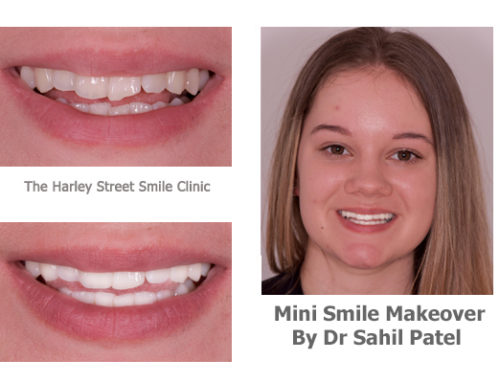 Mini Smile Makeover 04