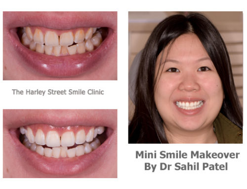 Mini Smile Makeover 05
