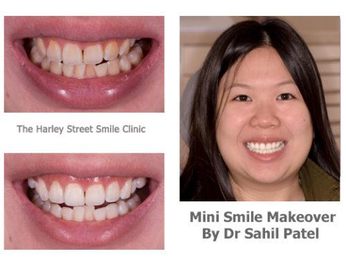 Mini Smile Makeover 05