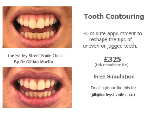 Tooth Contouring 05