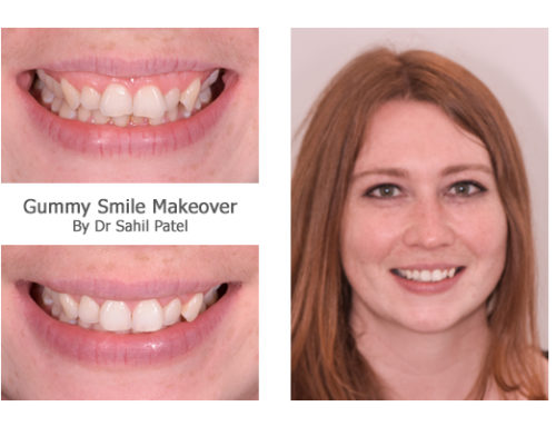 Gummy Smile Makeover 01