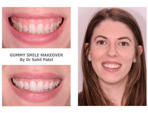 Gummy Smile Makeover 02