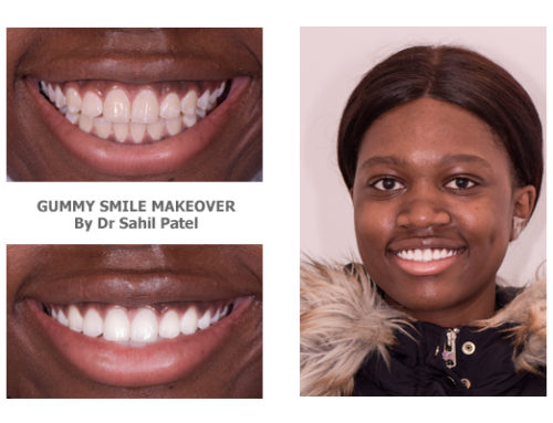 Gummy Smile Makeover 03