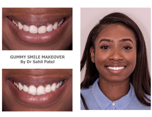 Gummy Smile Makeover