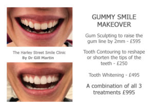 Gummy Smile Makeover Harley St Smile