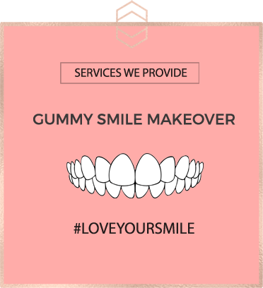 Gummy Smile Makeover - Harley St Smile