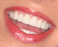 Jill's Teeth - Harley St Smile