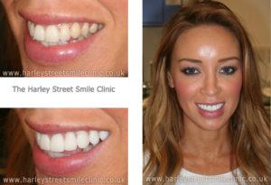 Lauren Pope TOWIE Teeth - Harley St Smile