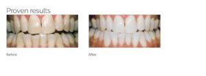 Teeth Whitening Before and After - Harley St Smile