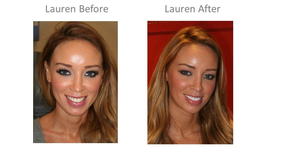 Lauren Pope TOWIE teeth - Harley St Smile