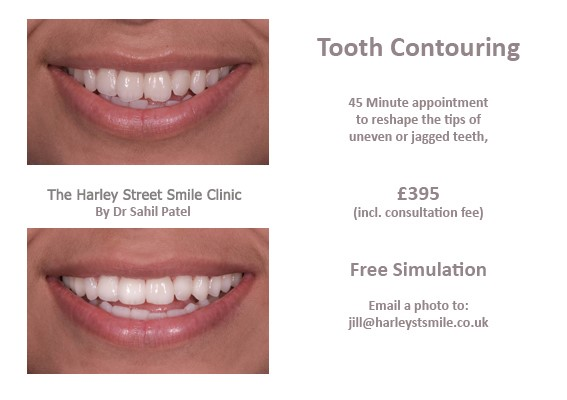 Tooth Contouring Harley St Smile