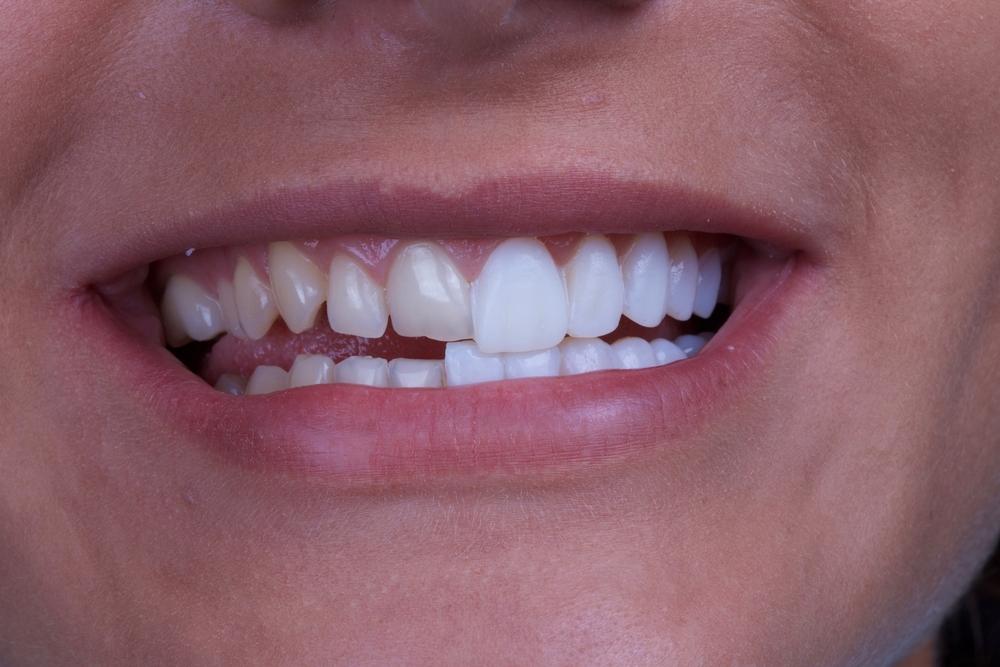 Porcelain Veneers - Harley St Smile