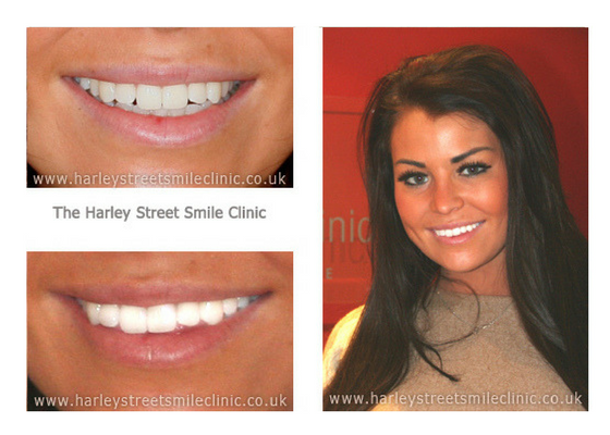 What Can London Cosmetic Dentistry Fix Harley St Smile